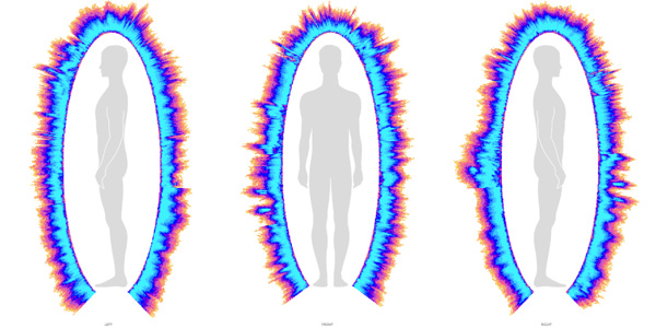 auras scan